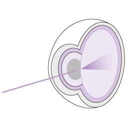 Cataract_development_step_2